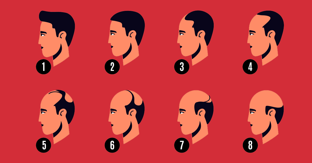 What To Do About Male Pattern Baldness