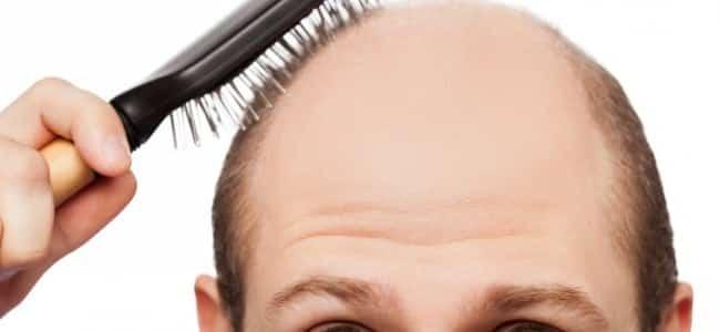 hair loss - MAXiM Hair Restoration