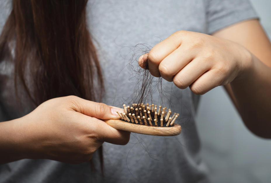 woman hair loss maxim hair transplant