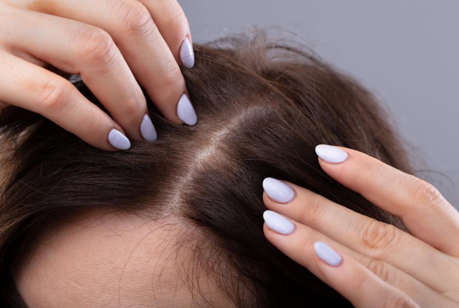 woman hair transplant maxim hair restoration