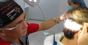 permanent hair transplant