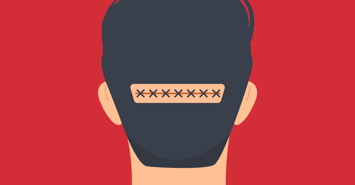 What Is a Strip Hair Transplant?
