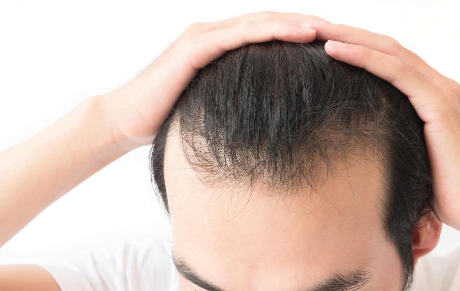 failed hair transplant maxim