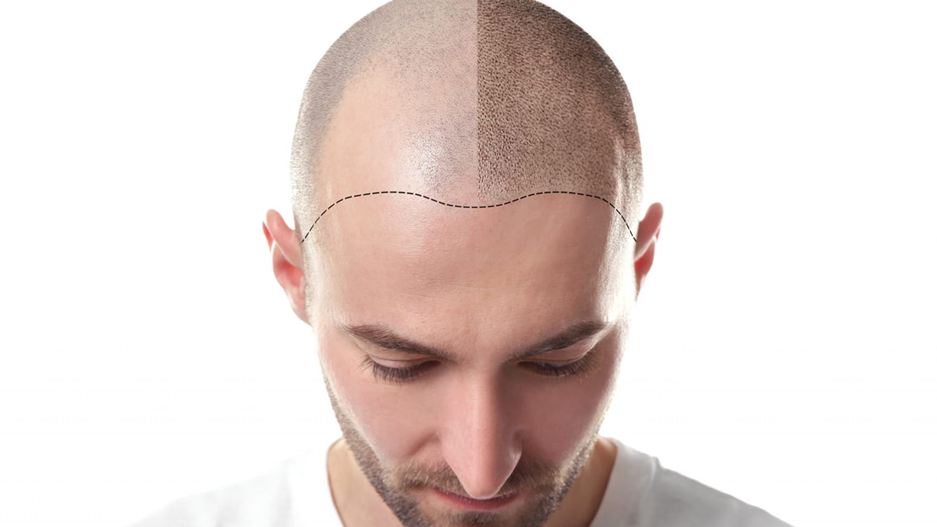 What Is Scalp Micropigmentation? Best Hair Loss Solution!