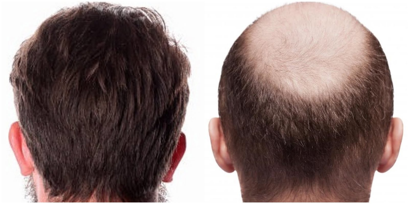 What Happens To Transplanted Hair?