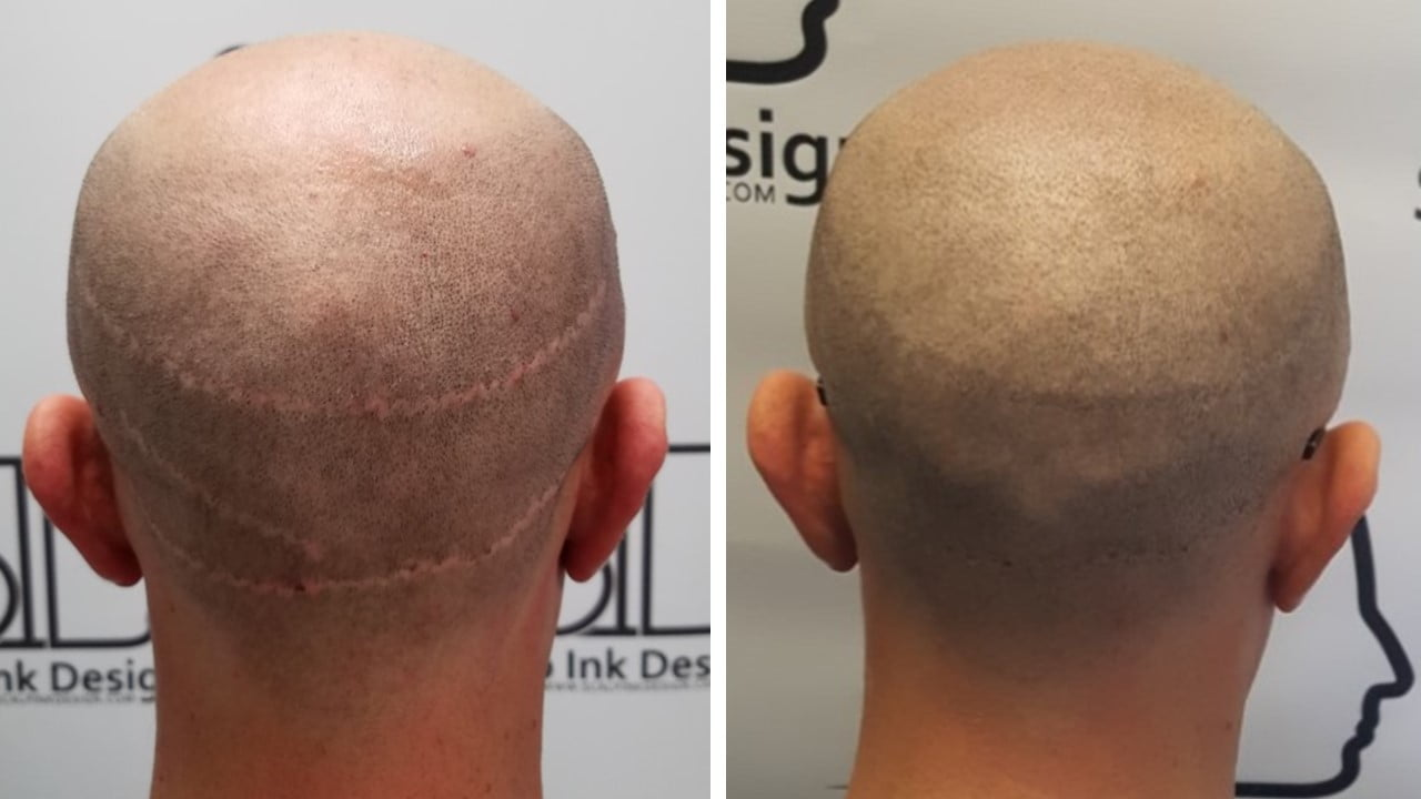 What Does A Hair Transplant Scar Look Like?