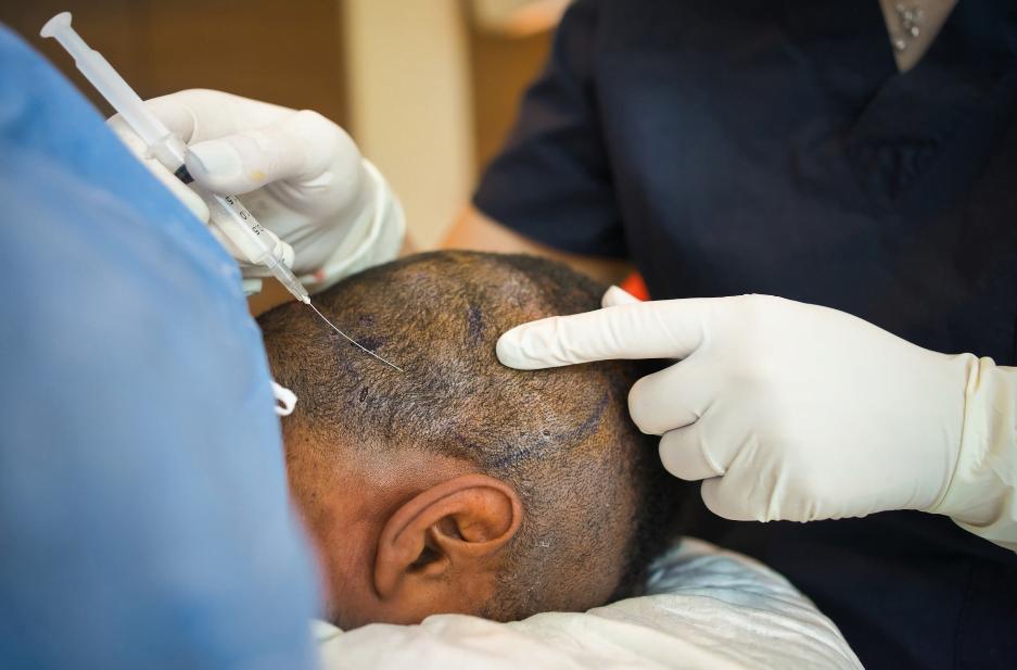 hair transplant scar maxim hair restoration