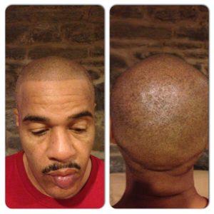 Scalp Micropigmentation - MAXiM Hair Restoration - Hair Transplant