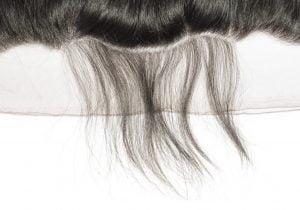 hair weave hair restoration