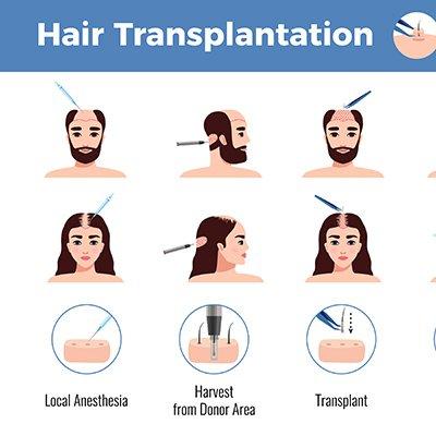 What Is A Strip Hair Restoration Procedure?