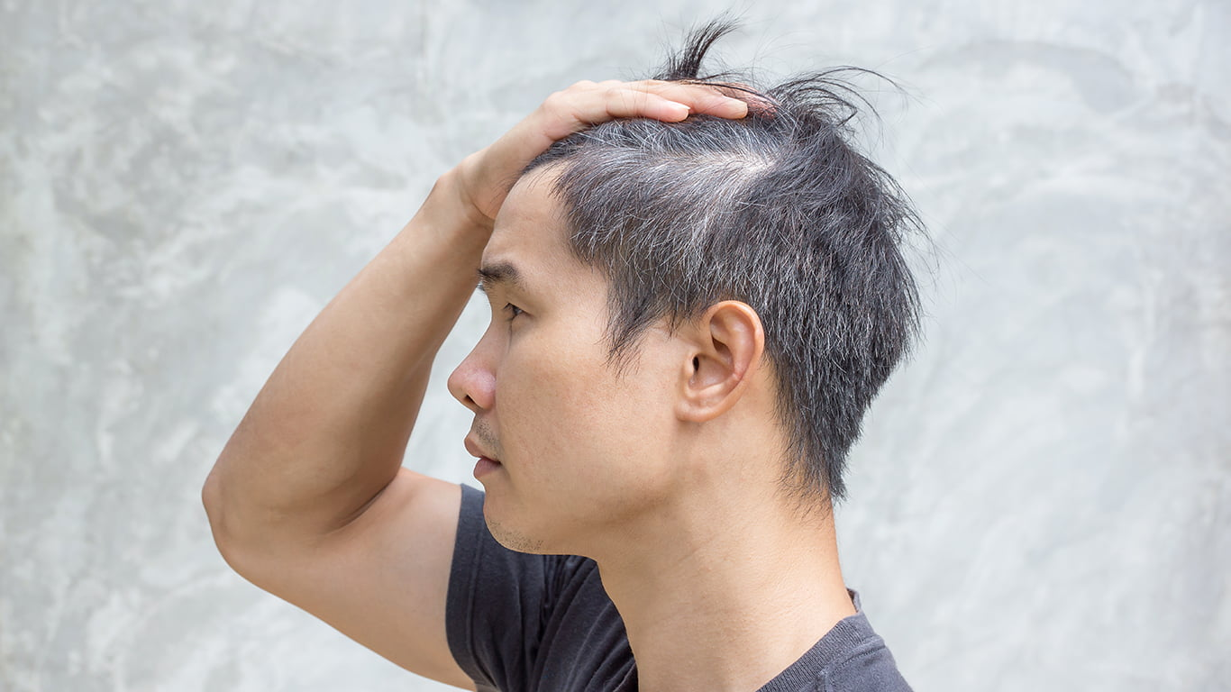 Why Is Your Hair Thinning? Here's Why