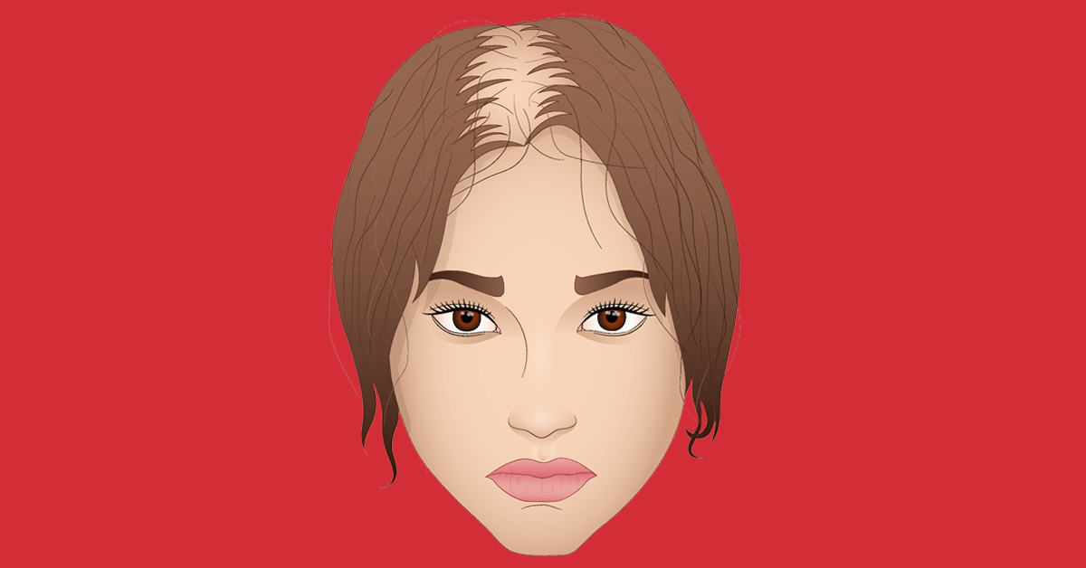 Do hair transplants work on women?
