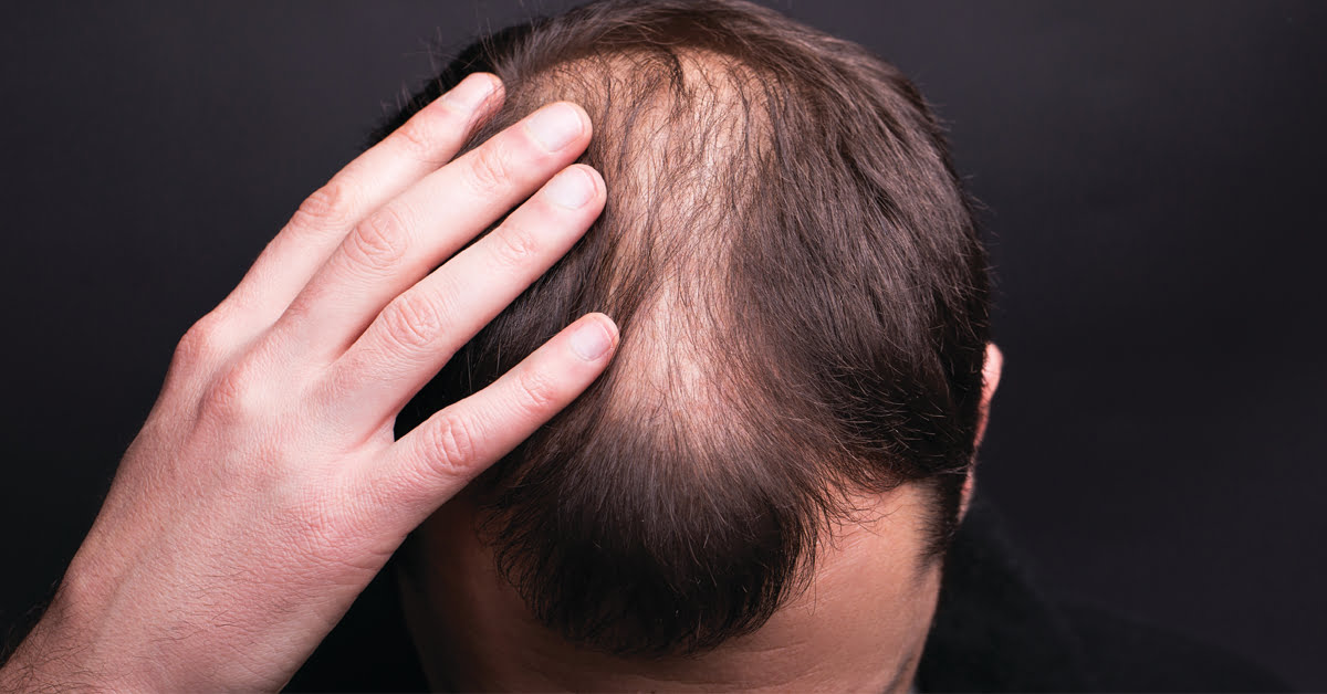 The Most Common Reason for Hair Loss