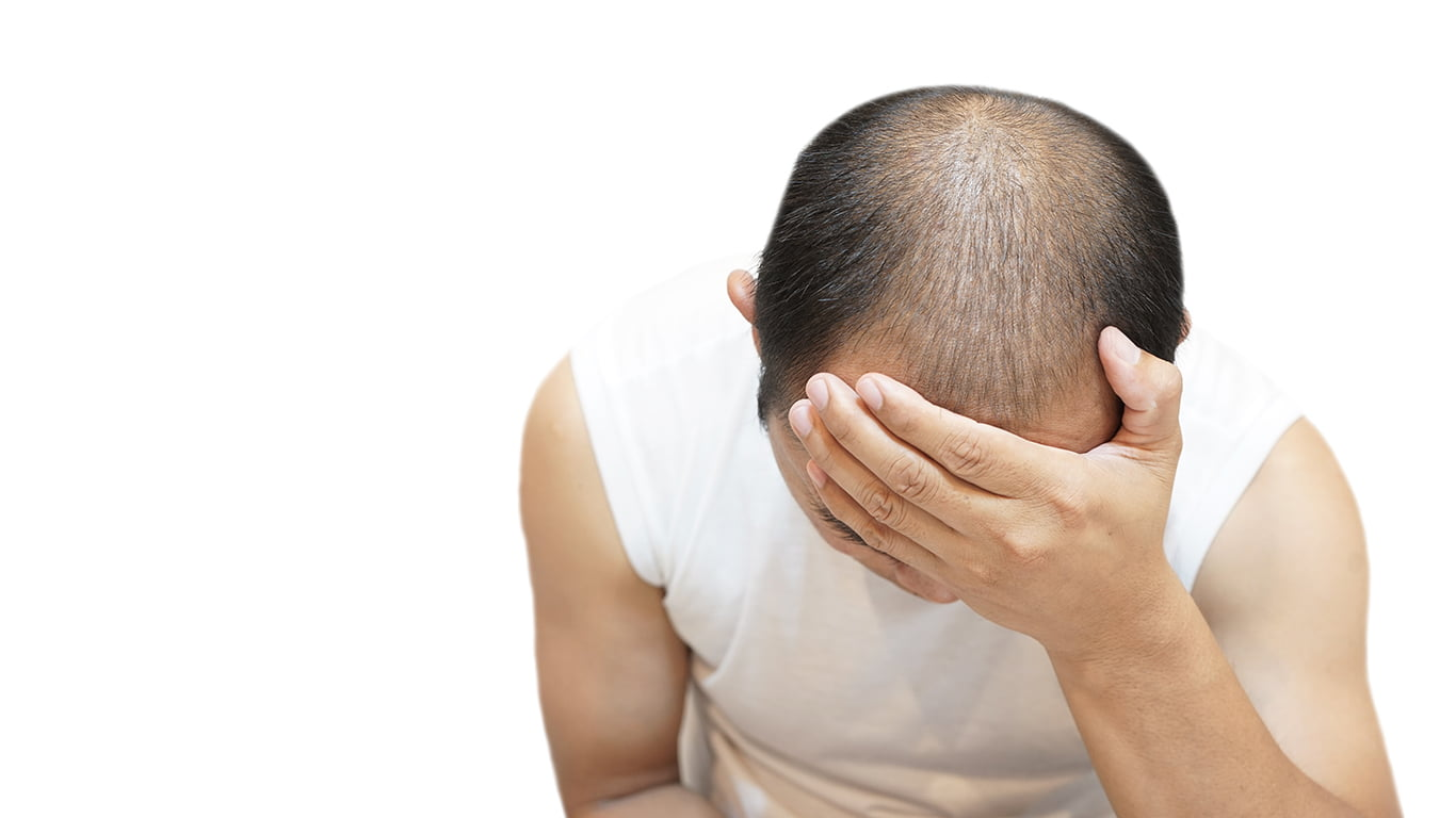 The Reasons Behind Hair Loss In Young Men