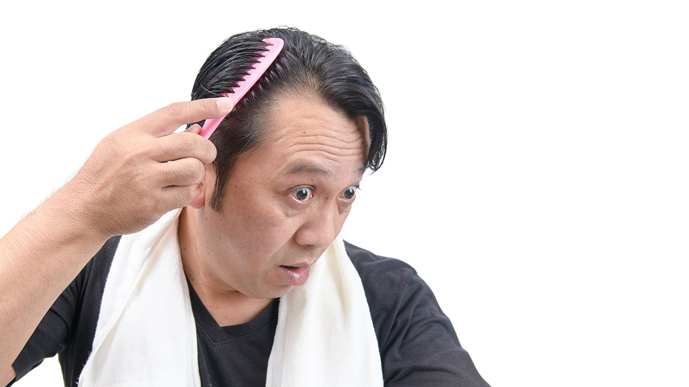 Traction Alopecia: Treatment, Causes and Prevention