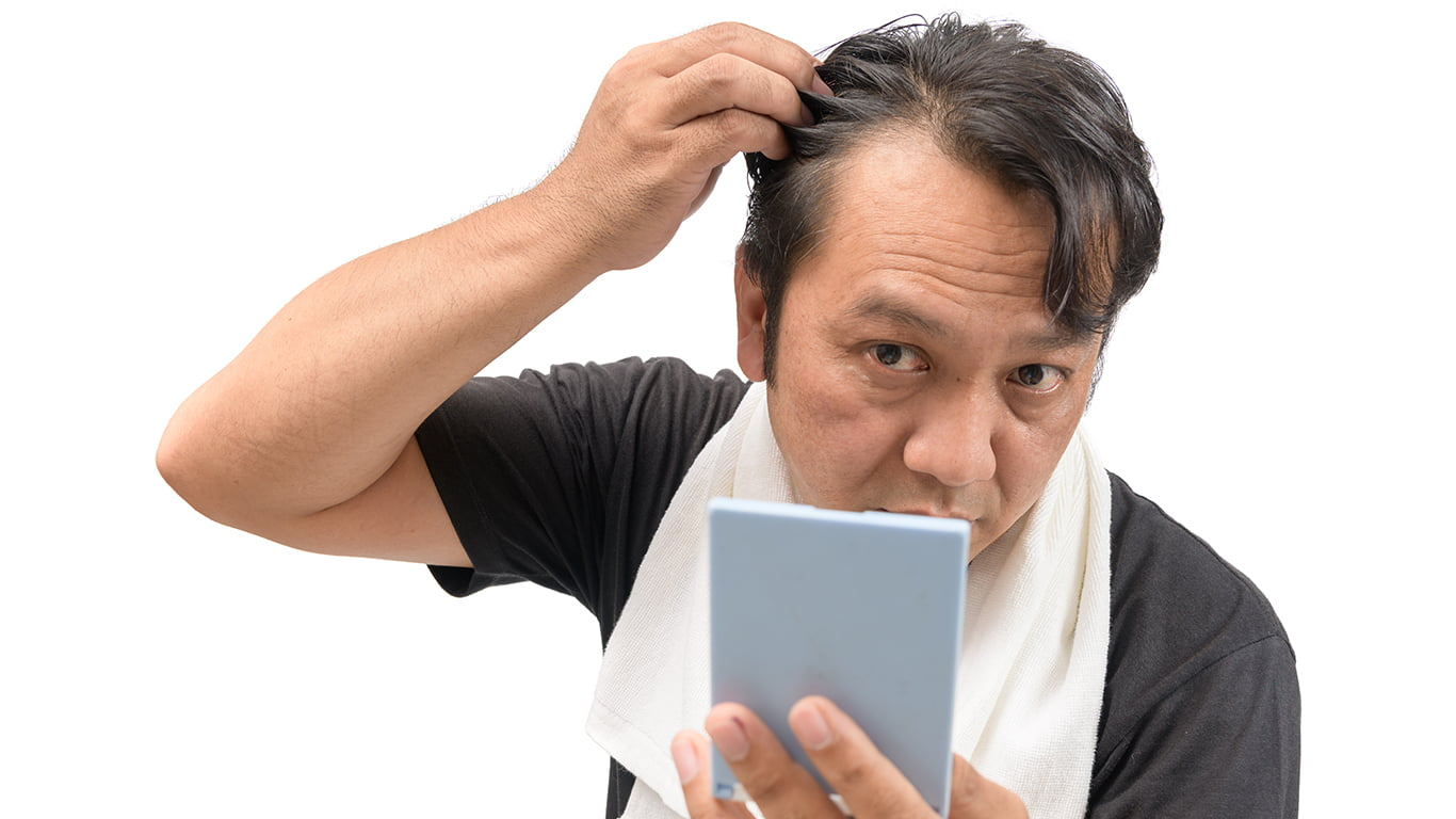 Important Facts About Asian Hair For Hair Transplant Procedures