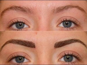 hair transplant to eyebrows