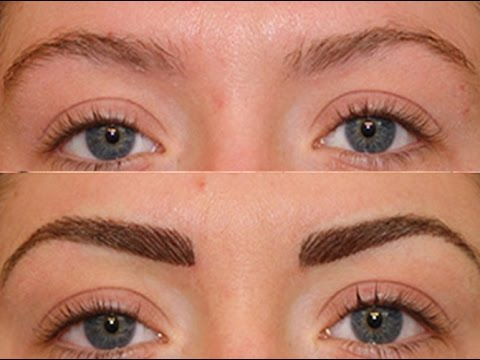 Is It Possible To Transplant Hair To Eyebrows?