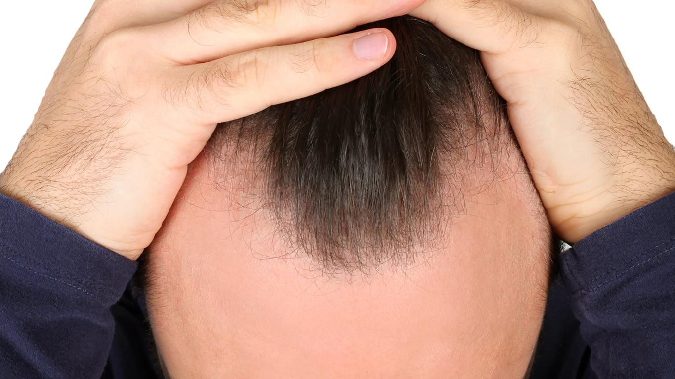 The Link Between Alopecia & ED