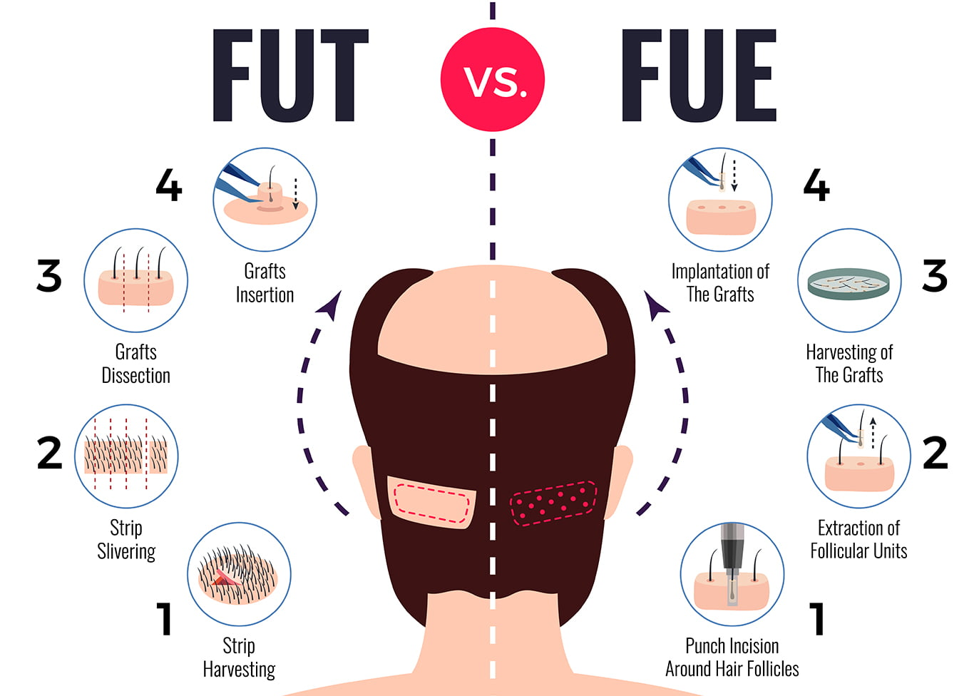 FUE vs FUT Hair Transplant: The Pros and Cons of each