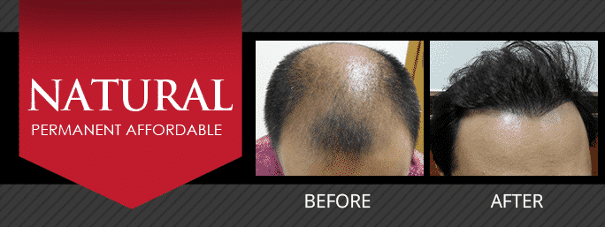 FUE | Follicular Unit Extraction