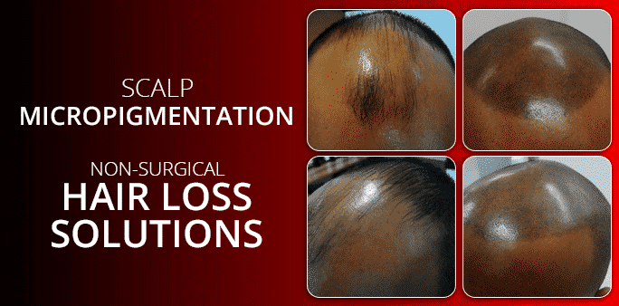 Non-Surgical Hair Loss Solutions For Teenage Boys