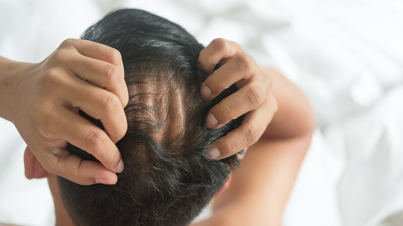 Is hair loss reversible?