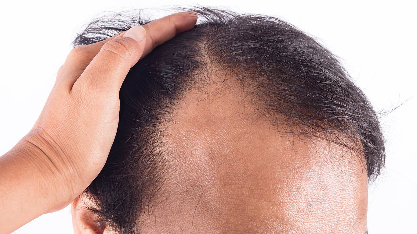 Hair Loss Can Be A Difficult Issue To Deal With, Especially If It Happens Earlier Than You Expected.