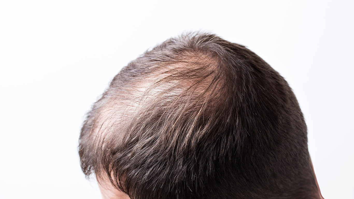 Treatment Options For Thinning Hair
