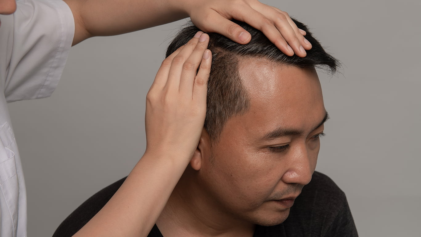 What Is NeoGraft Hair Restoration?