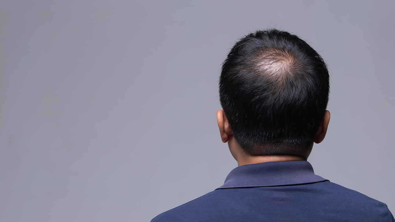 The Stages of Hair Loss in Men