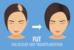 Follicular Unit Transplant (FUT)