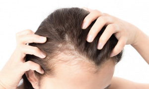 early hair loss