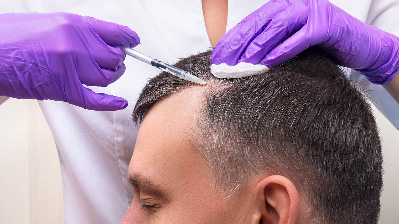 What To Expect From Surgical Hair Transplant?