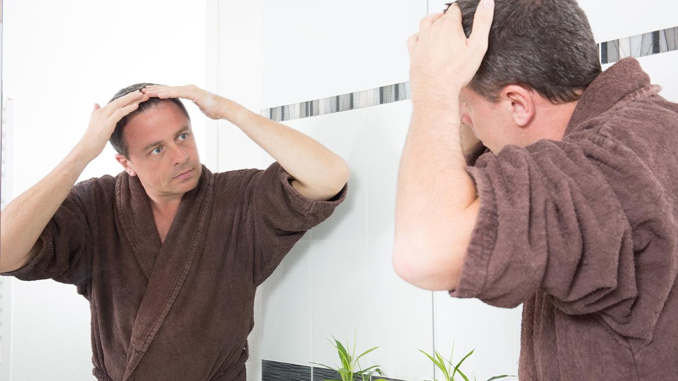 What Is SmartGraft Hair Restoration?