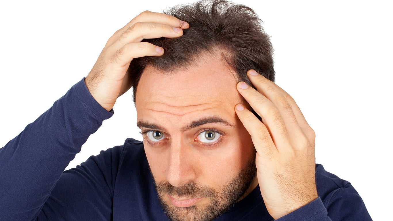 What are the genetic factors that influence hair loss?