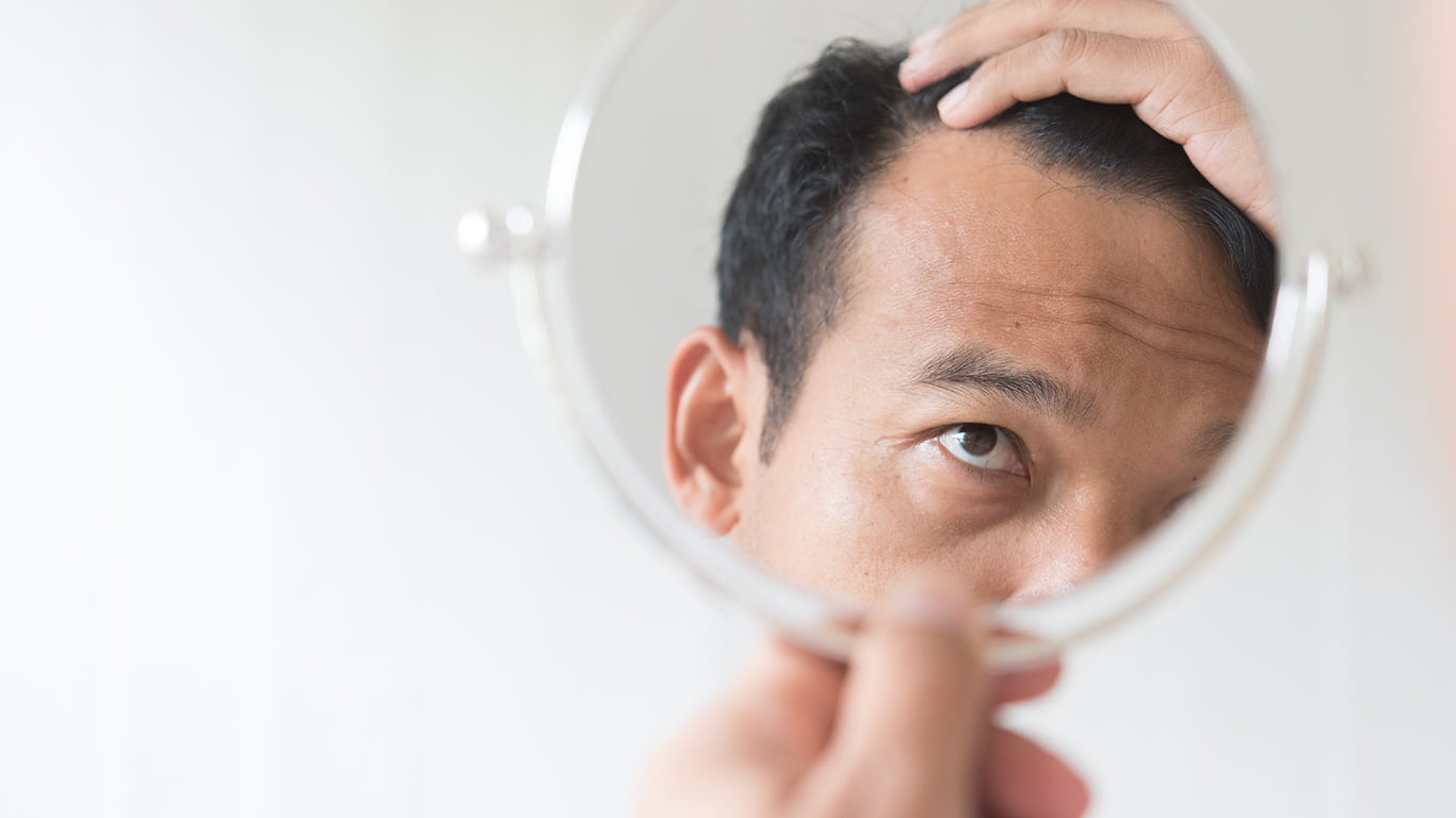 What To Do Before Hair Transplant?