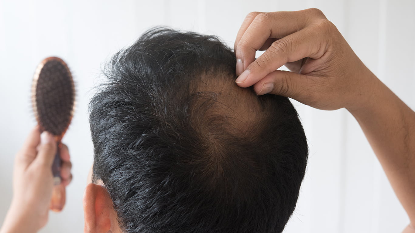 Can certain hair treatments or styling products play a role in hair loss?
