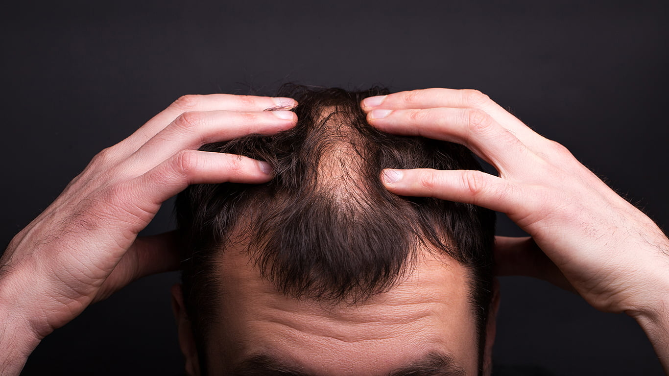 Thinning Hair Problems? Going Bald? Scalp Micropigmentation May Be Your Best Bet.