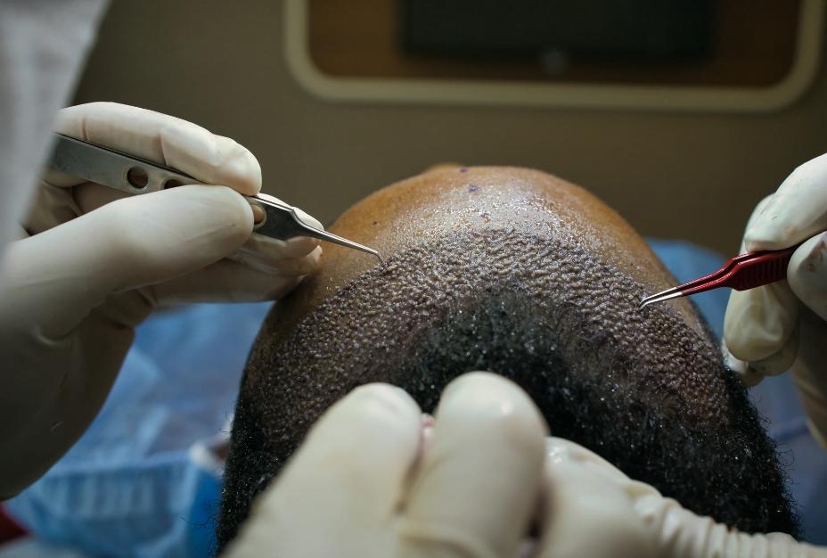 smart graft hair transplant maxim restoration