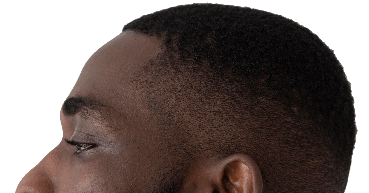 Facts About How Your Hair Will Look After Hair Transplant Surgery