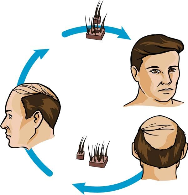hair plugs treatment hair restoration