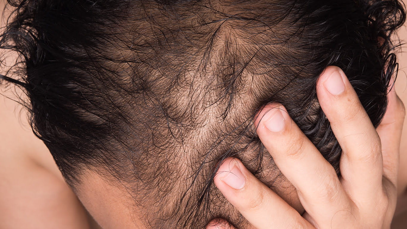 What If A Hair Transplant Fails?