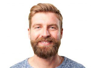 beard facial hair transplant