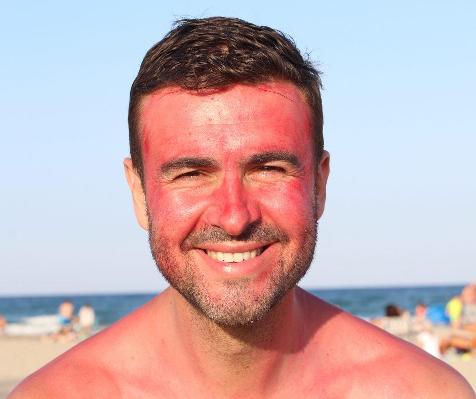 hair loss summer sunburn maxim hair restoration